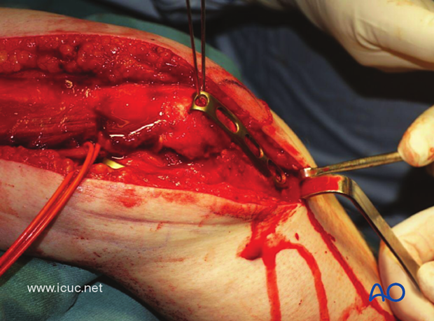 A hook plate is applied over the longitudinal K-wires to complete the fixation of the osteotomy.
