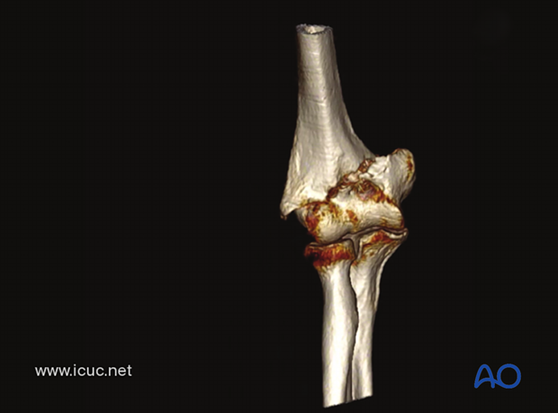 This 3D-CT shows a low transcondylar/supracondylar distal humeral fracture.