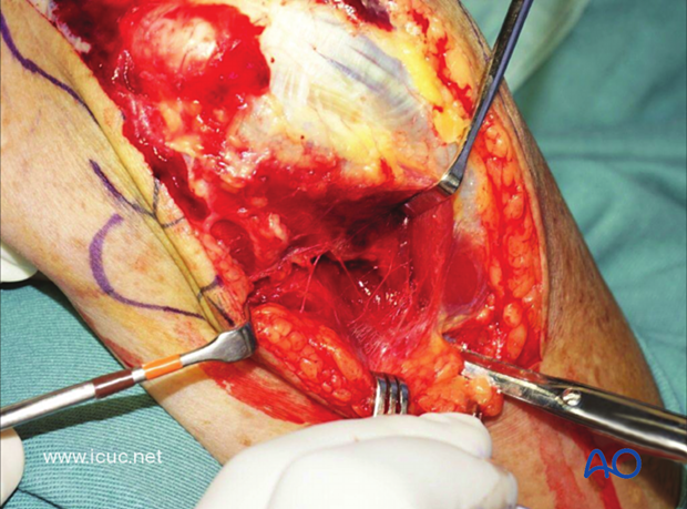 The first task is to carefully dissect medially to identify and protect the ulnar nerve.