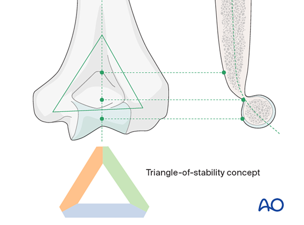 The mechanical properties of the distal humerus are based on a triangle of stability, comprising the medial and lateral columns and the articular block.