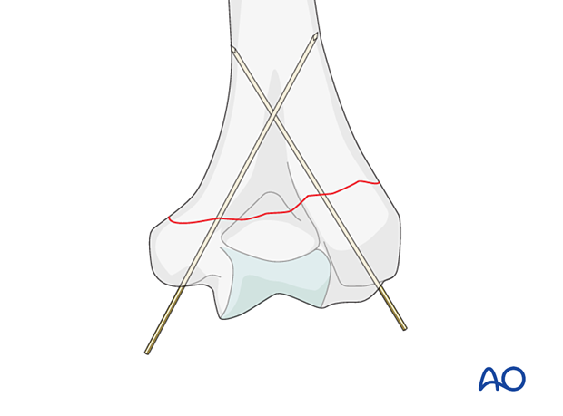 Temporarily holding the reduction with two K-wires introduced from the distal fragment into one or both columns