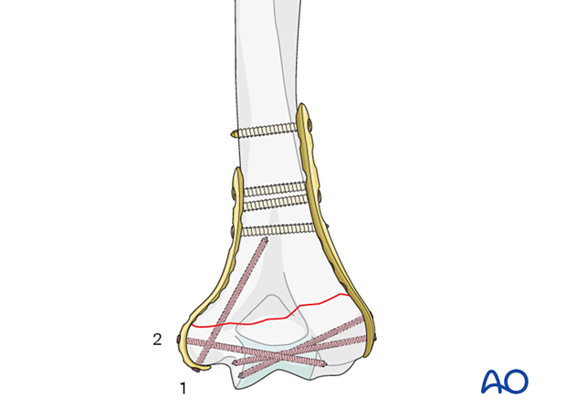 Bicolumnar plate fixation with medial distal-to-proximal column screw