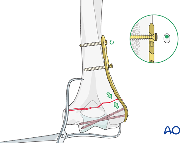 Lateral plate application in compression mode