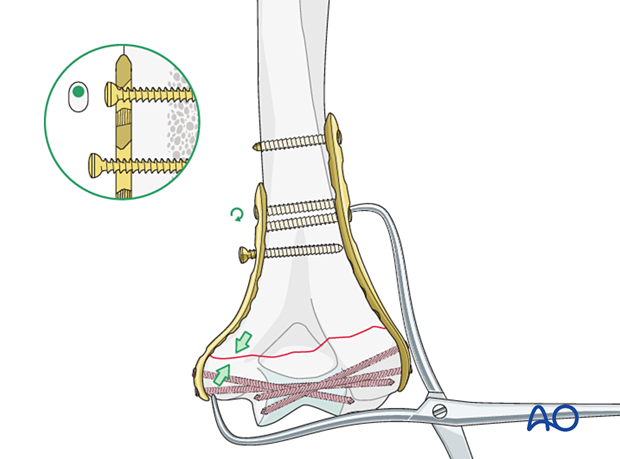 Medial plate application in compression mode
