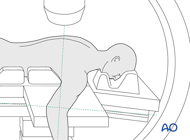 C-arm positioning with the patient prone