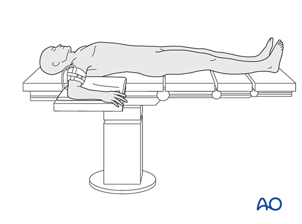 Arm position for lateral approach