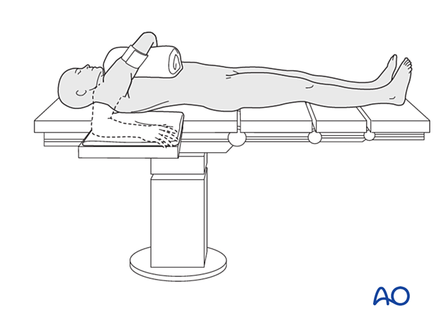 The arm can be positioned accross the chest.