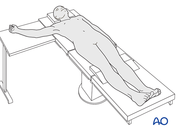 Arm position for medial approach
