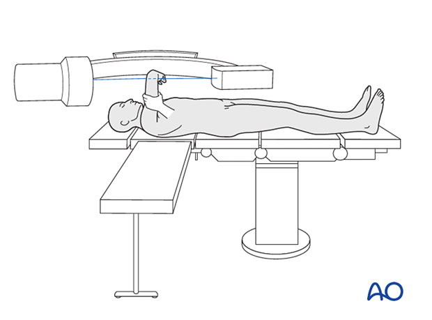 The C-arm can be brought in from the opposite side of the table in a horizontal orientation. Lateral views are obtained by lifting the elbow into the x-ray beam, and AP views are obtained by rotating the shoulder.