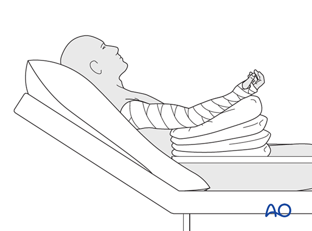 Semireclining patient position, with the elbow elevated, preferably above the chest, on pillows