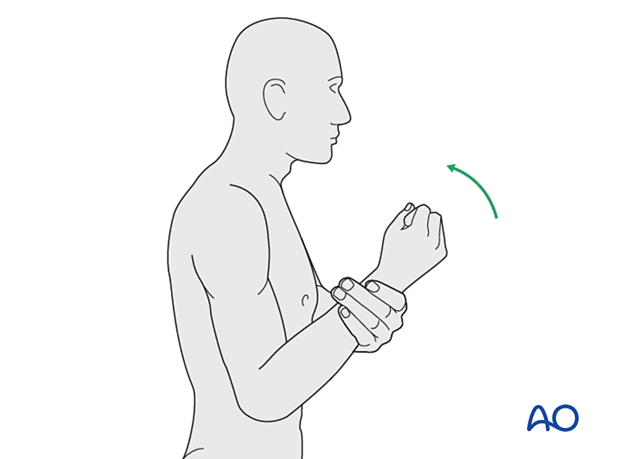 Gravity-eliminated active-assisted elbow motion exercises