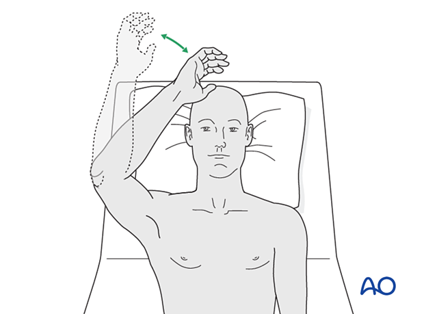 Over-head elbow motion exercises