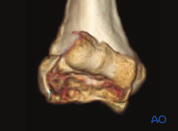 3-D CT reconstruction of a complex coronal fracture of capitellum and trochlea, involving a lateral epicondylar fracture, posterior impaction, and medial fracture extension