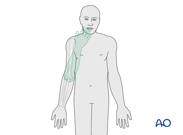 During elbow flexion, the forearm moves on a plane such that the hand goes directly towards the mouth.