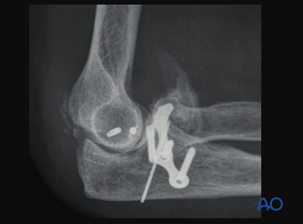 X-ray image of the elbow showing heterotopic ossification