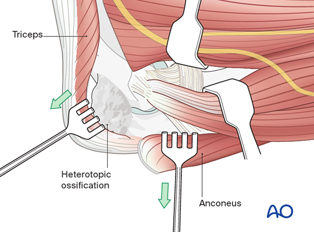 The triceps and anconeus are elevated off of the distal humerus and ulna