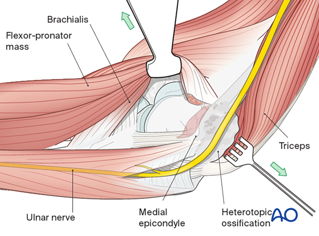 The over-the-top approach elevates the brachialis muscle off the distal humerus along with the anterior half of the flexor-pronator mass that is divided horizontally.