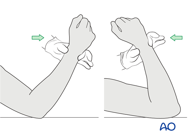 The elbow is gently mobilized to confirm restoration of motion.
