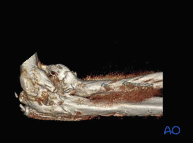 3-D CT imaging of the elbow showing heterotopic ossification