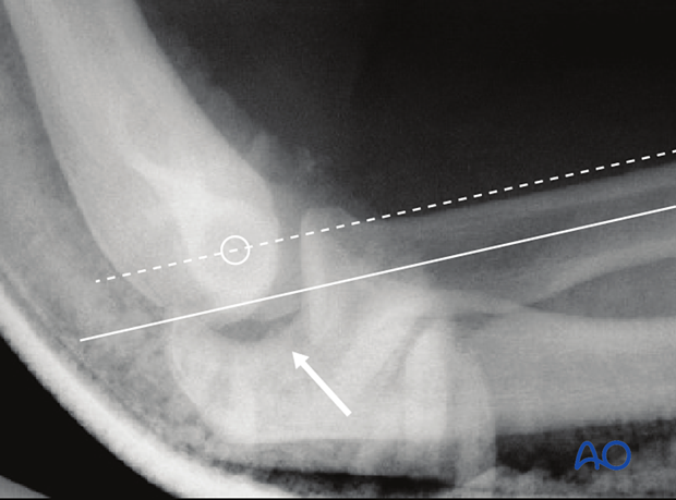 """On a lateral x-ray, a line bisecting the radial shaft may not pass through the middle of the capitellum, and there may also be a slight gap or """"drop sign"""" in the ulnohumeral joint."""