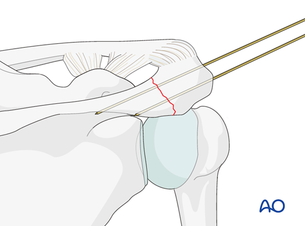 Guide wire insertion/Temporary fixation