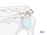 body and processes acromion