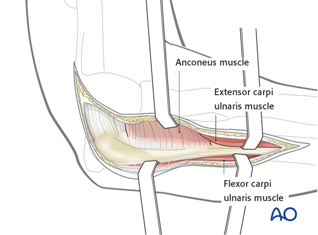 Boyd approach – Posterior surface of ulna