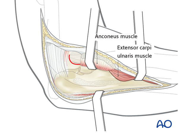 Boyd approach – Osteotomy of lateral humeral epicondyle