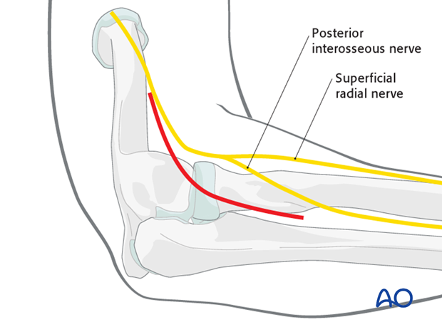 Lateral approach to proximal forearm – Kocher – Kaplan - Incision