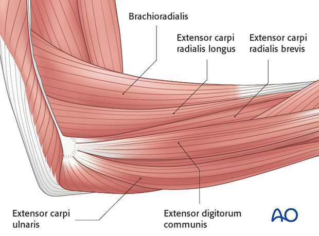 Lateral approach to proximal forearm – Kaplan interval
