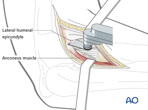 Lateral approach to proximal forearm – Kaplan – Kocher – Osteotomy of lateral epicondyle