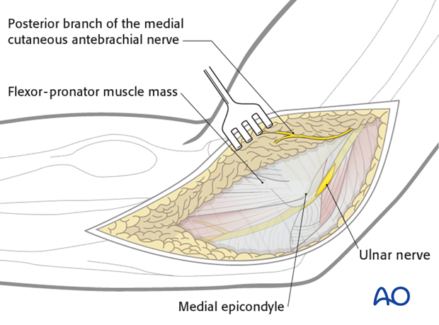 Repair of medial collateral ligament – Ulnar nerve
