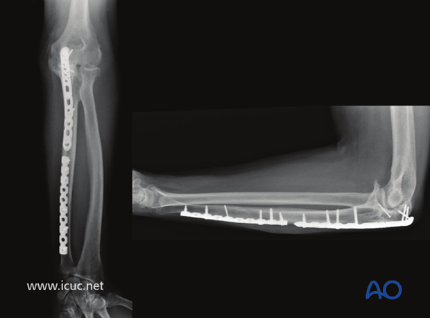 open reduction internal fixation