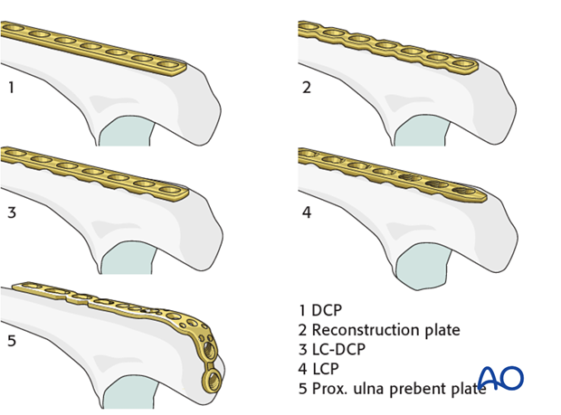 Ulna multifragmentary metaphyseal – Bridge plate – Implant selection