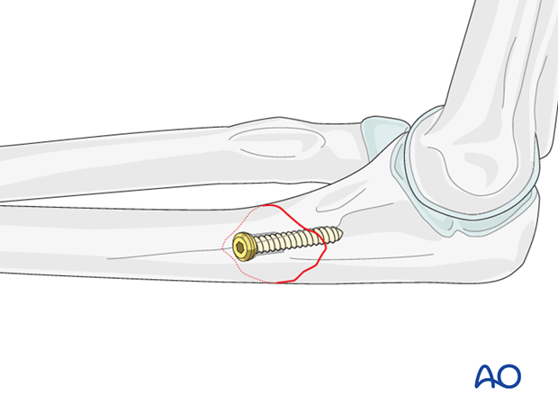 Ulna oblique metaphyseal – Lag screw with protection plate – Lag screw insertion