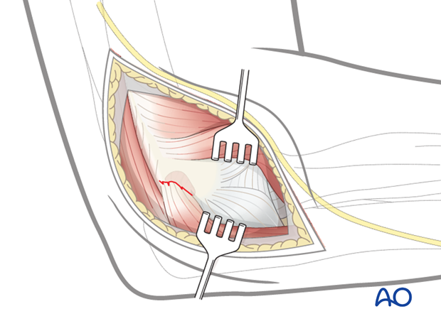 Repair lateral collateral ligament - Positioning