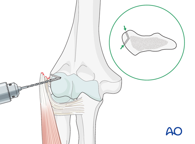 Repair lateral collateral ligament – Suture repair
