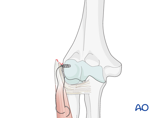 Repair lateral collateral ligament – Anchor fixation