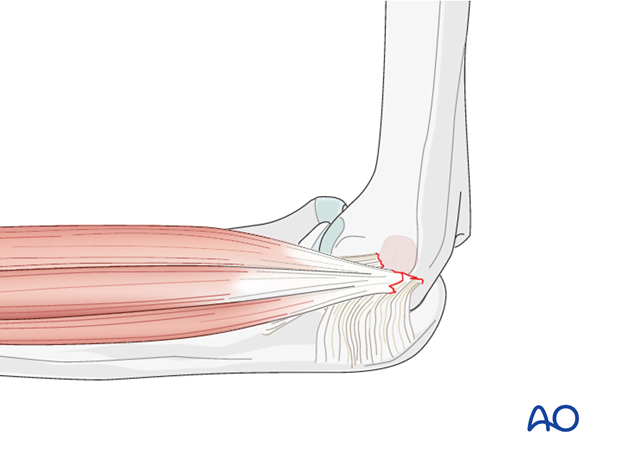 repair of medial collateral ligament