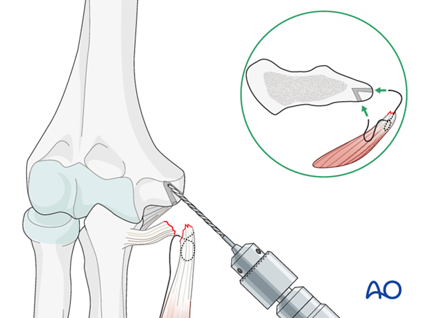 Repair of medial collateral ligament – Suture repair