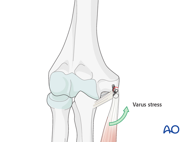 Repair of medial collateral ligament – Anchor fixation
