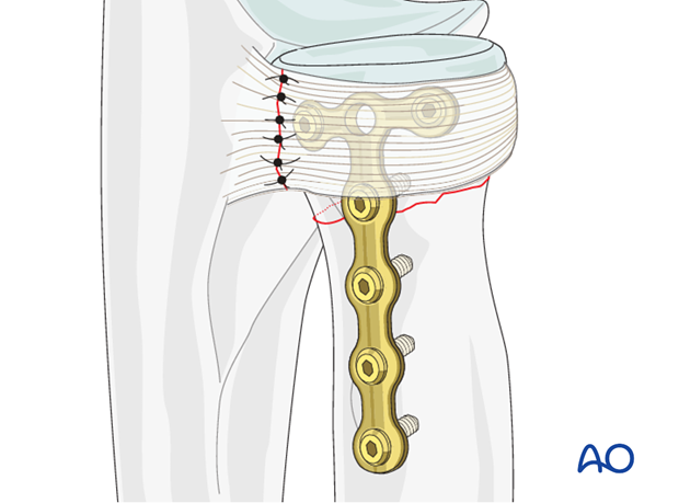 Transverse radial neck – Compression with T-plate