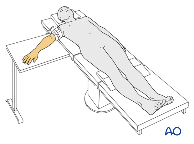 supine for lateral access