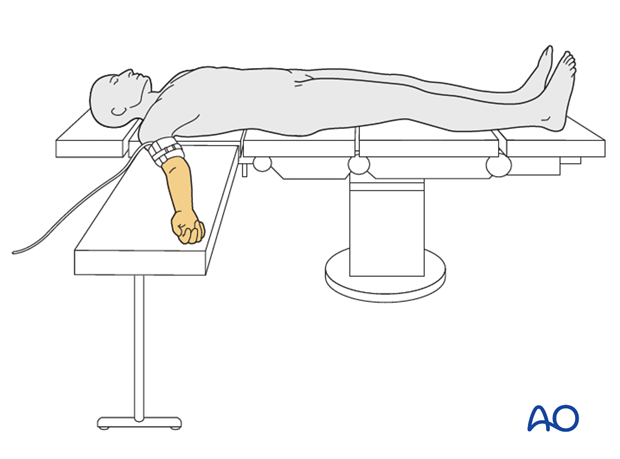 supine for anterior access