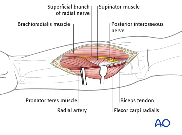 Anterior approach henry