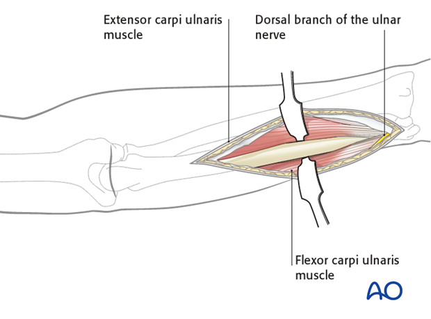 Approach to the ulna