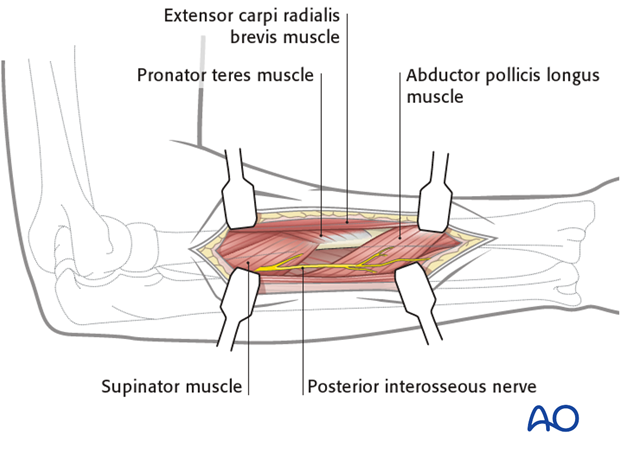 Posterolateral approach (Thompson)