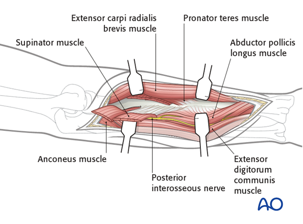 Combined posterior approach to radius and ulna