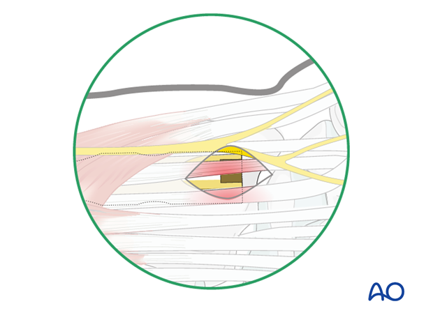 Approaches to the radius for intramedullary nailing