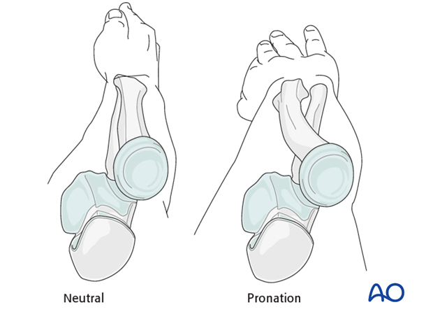Safe zones for pin placement in the forearm
